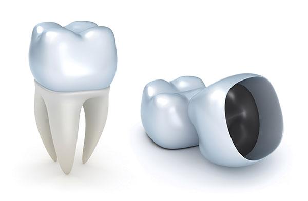 temporary dental crown in ajax