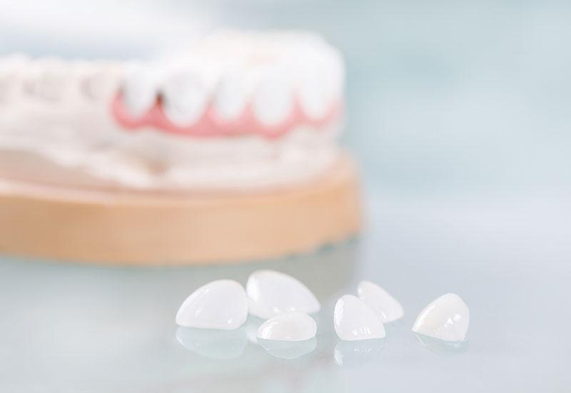 dental veneers for small teeth ajax dentist